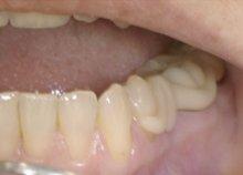 Metallfreier Zahnersatz
