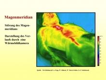 Infrarotdarstellung des Magenmeridians